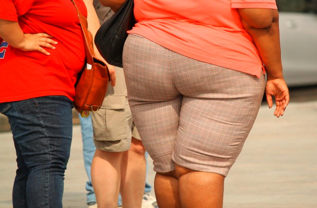 obezita žena